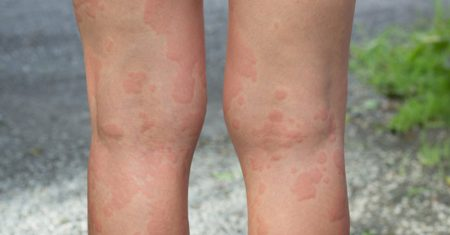 Chronic Urticaria from the patient perspective