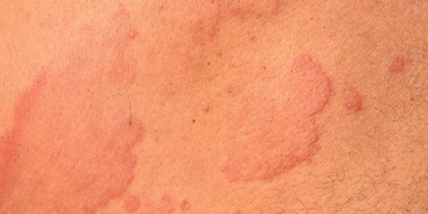 Missed Opportunities in Chronic Urticaria