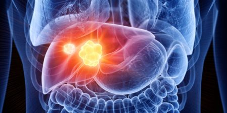 Therapies in Hepatocellular